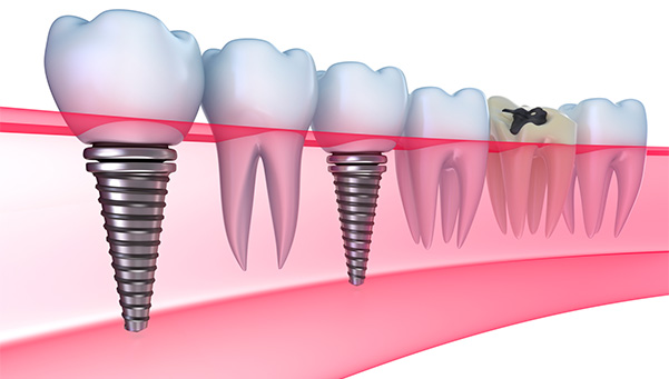 Lancaster pa dental implants